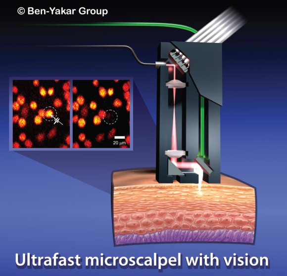 Ultrafast microscalpel with a vision.