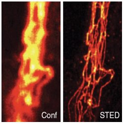 STED vs. Confocal Microscopy. Comparison of confocal (Conf) and STED image of immunolabeled vimentin in a mammalian cell, after linear deconvolution.